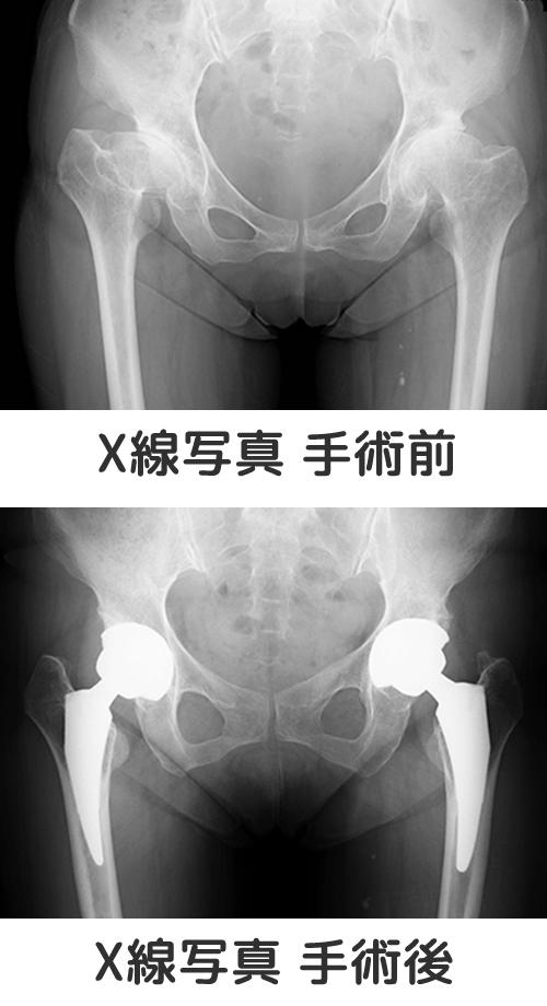 X線写真 手術前後