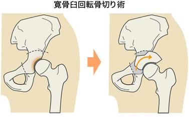 寛骨臼回転骨切り術