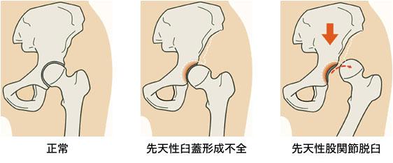 先天性股関節脱臼、寛骨臼(臼蓋)形成不全